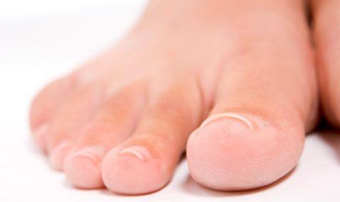 ¿Que son los Hongos en los pies?