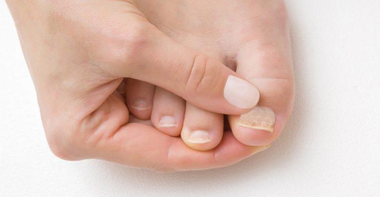 ¿Qué hacer si mi uña del pie esta a punto de caerse o se ha caído?